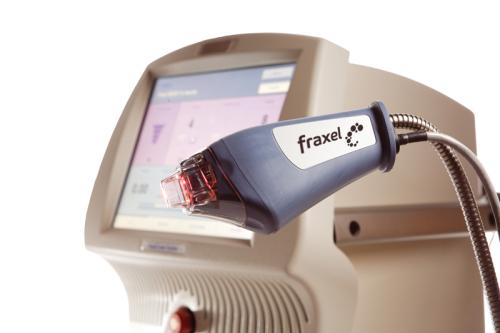 Szpecących blizn możesz pozbyć się przy użyciu lasera Fraxel!