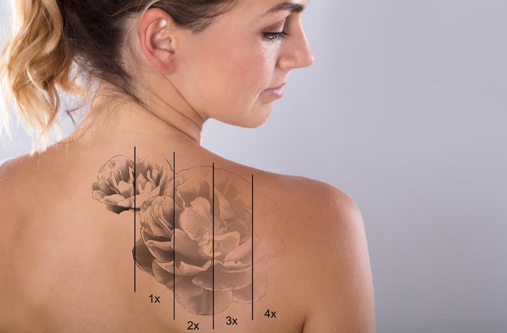 Jak się pozbyć niechcianego tatuażu?