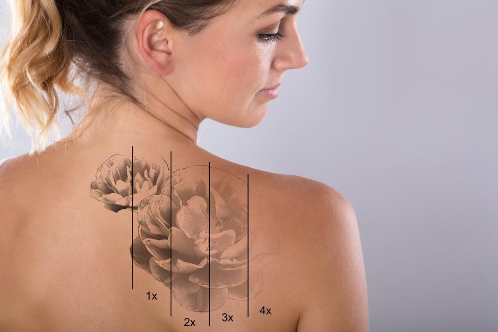 Jak sie pozbyc niechcianego tatuazu