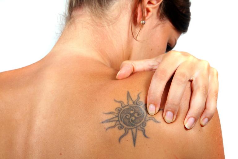 Usuwanie tatuażu w Klinice Krajewski