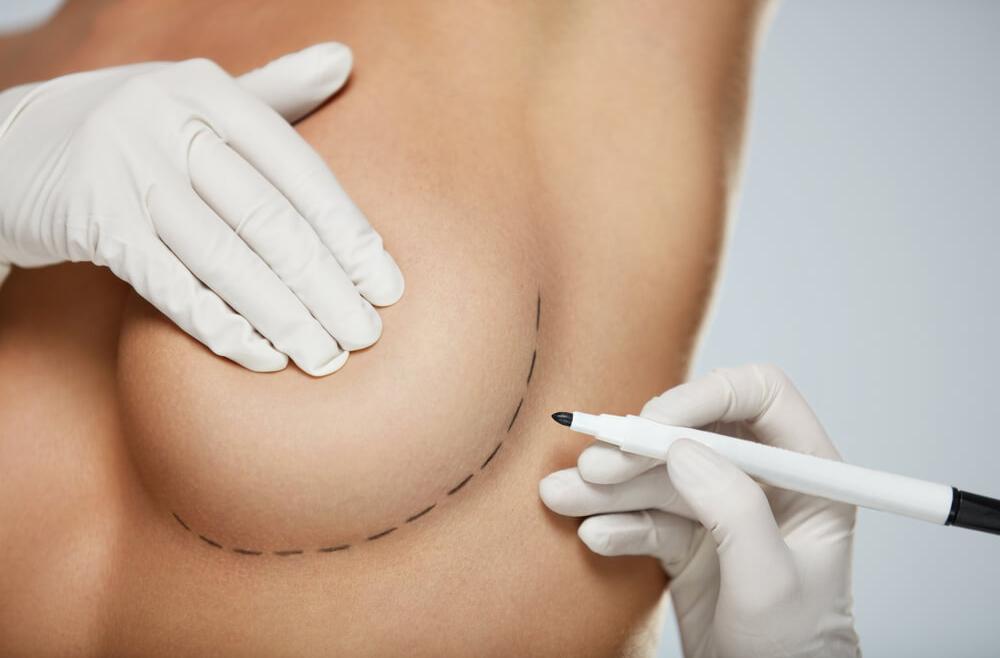 Implanty piersiowe – jak dobrać idealny kształt i rozmiar?