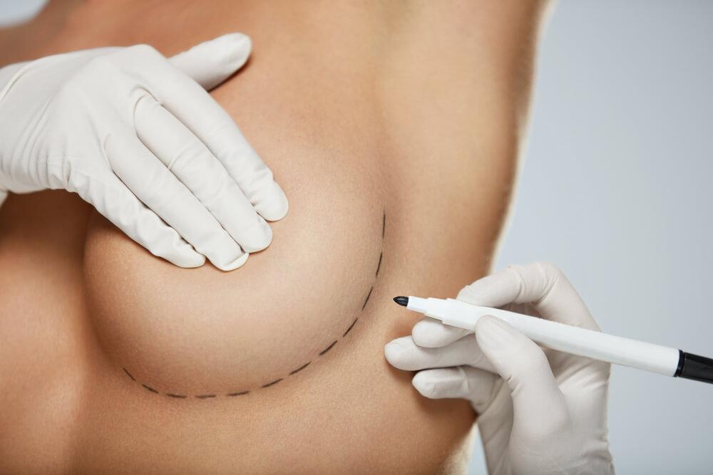 Implanty piersiowe – jak dobrac idealny ksztalt i rozmiar