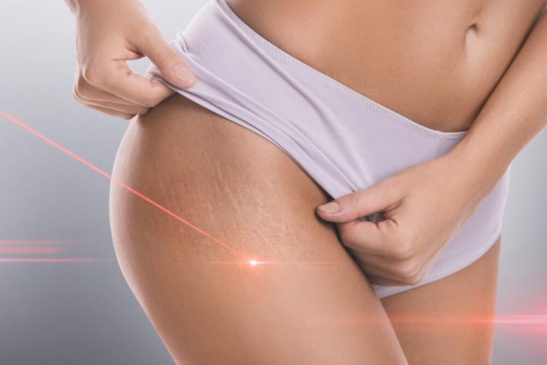 Zabiegi laserowe latem