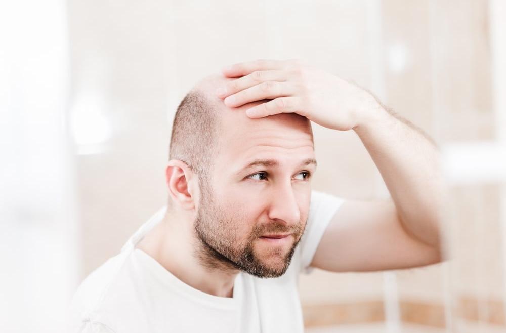 Łysienie androgenowe – przyczyny i leczenie schorzenia