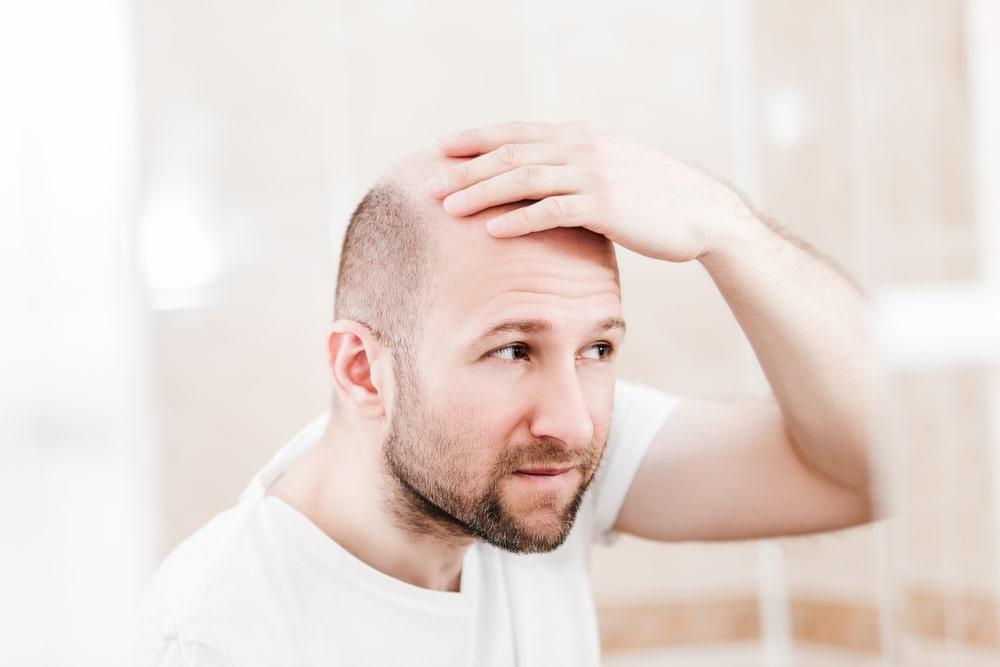 Lysienie androgenowe – przyczyny i leczenie schorzenia