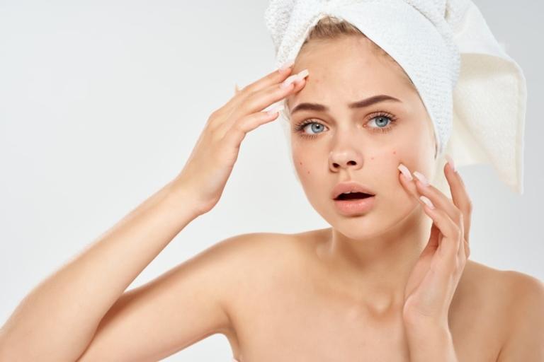 Leczenie trądziku – środki farmakologiczne a laser