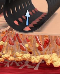 redukcja celulitu