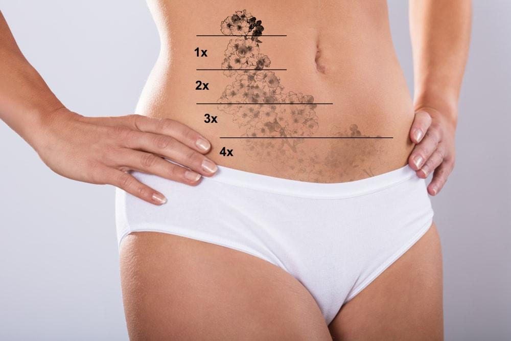 Na czym polega laserowe usuwanie tatuażu? – poradnik