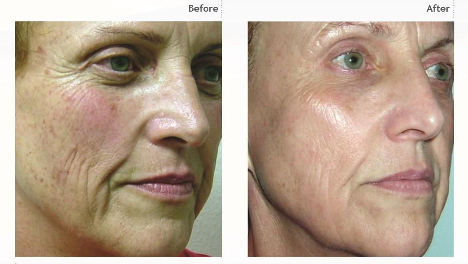 iPixel odmładzanie skóry