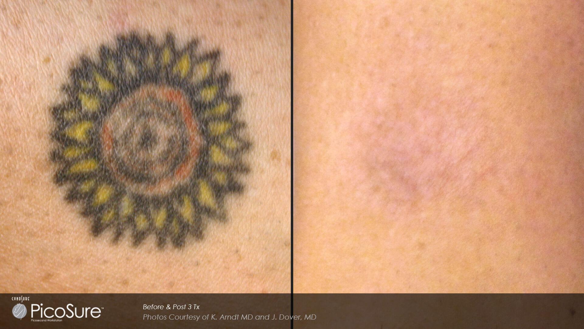 Usuwanie tatuażu Picosure