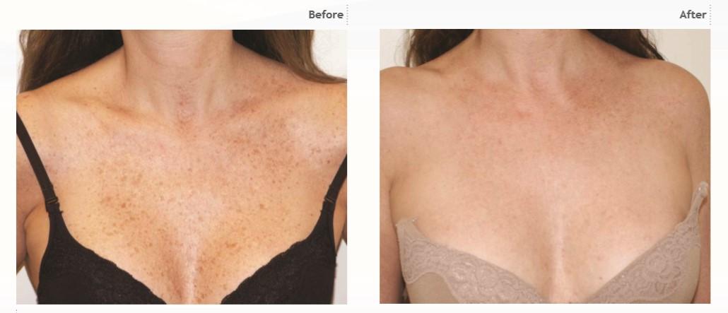 harmony xl pro zwalczanie problemów skóry