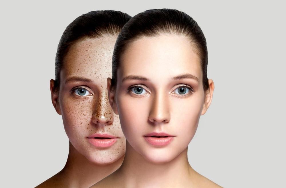 Rodzaje zmian pigmentacyjnych i przyczyny ich powstawania