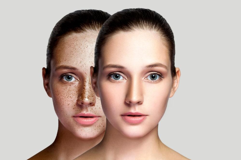 rodzaje zmian pigmentacyjnych