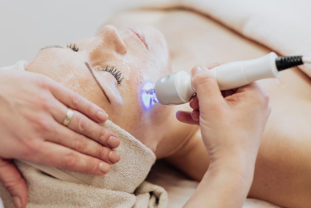 Efektywne usuwanie melasmy? Wybierz laseroterapię!