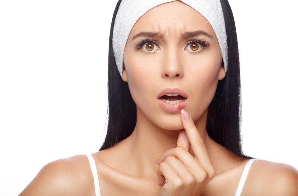 Przyczyny występowania i leczenie opryszczki – poradnik