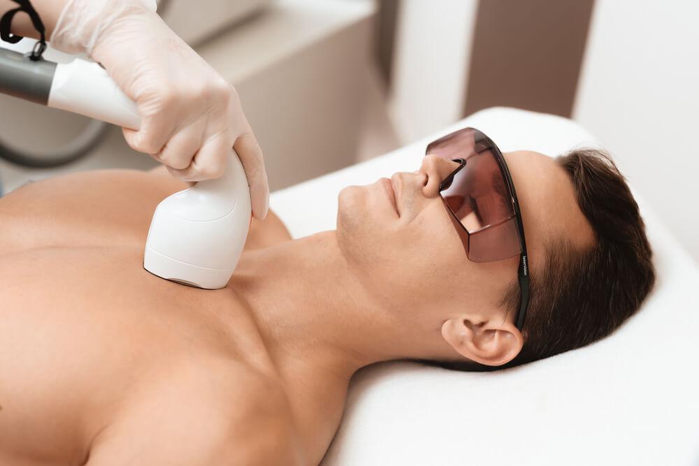 Laserowe usuwanie owłosienia u mężczyzn – co warto wiedzieć przed zabiegiem?